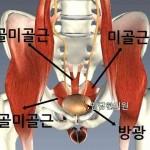 전립선염 통증 치료법1- 회음부, 서혜부, 아랫배, 성기 통증