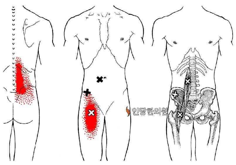 장요근근막통