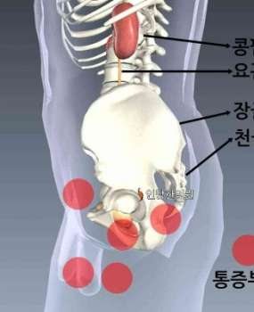 전립선염 통증 1 – 회음부, 서혜부, 아랫배, 성기 통증