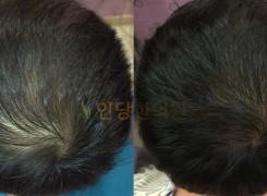 남성탈모 치료 Before & After #1