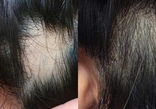 원형탈모 Before & After #2