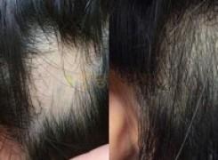 원형탈모 치료 Before & After #1